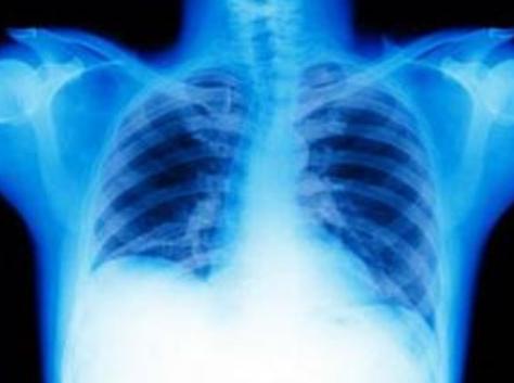 哮喘怎么治疗