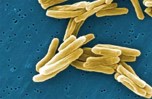 铜绿假单胞菌感染的症状都有哪些呢