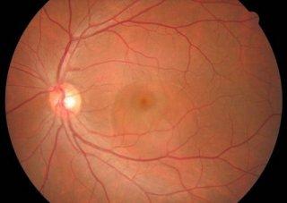 导致视网膜脱落的原因是什么呢