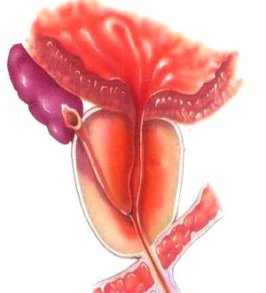 前列腺癌如何治疗好 化学疗法