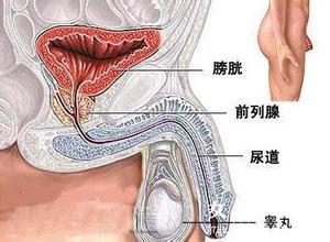 前列腺癌如何检查呢