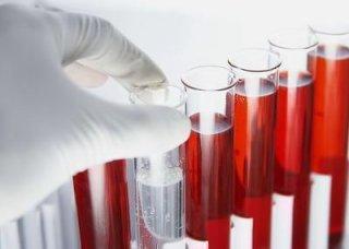血精症需要做哪些检查呢