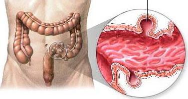 胃癌术后会并发哪些疾病呢