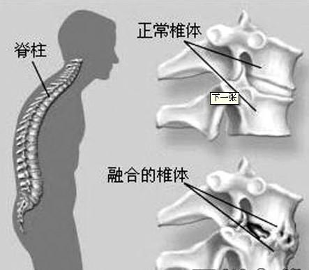中老年强直性脊柱炎药物治疗是怎样的