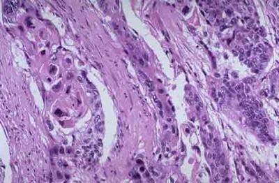 皮肤癌的早期症状都有哪些呢