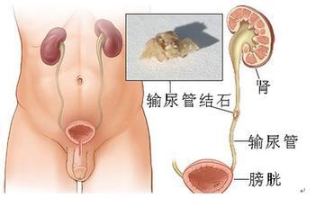 肾积水的病因是什么呢