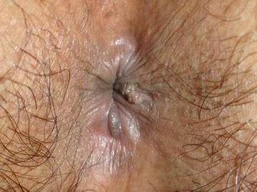 警惕肛门尖锐湿疣的这四大危害