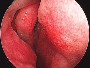 解析鼻中隔偏曲的常见症状