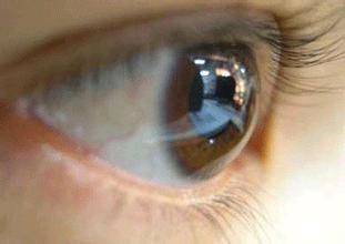 关于导致青光眼的因素你了解多少