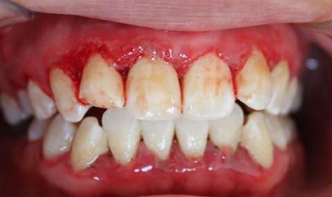 牙龈炎患者日常应该如何预防呢