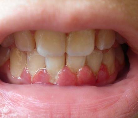 警惕牙龈炎会带来这五大并发症