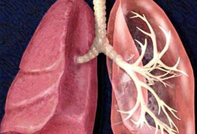 肺炎的四种常见症状介绍