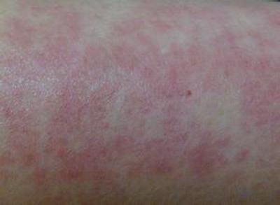 皮肤过敏怎么办 春季护理方法介绍