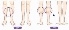 网友分享如何瘦小腿
