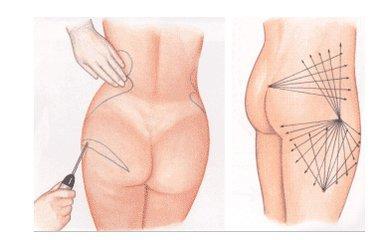 臀部吸脂的三种方法