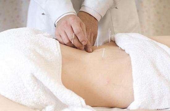 针灸减肥需要注意哪些方面