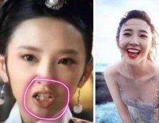 唐艺昕绝对算是整牙最成功的女星,效果比整容好太多了