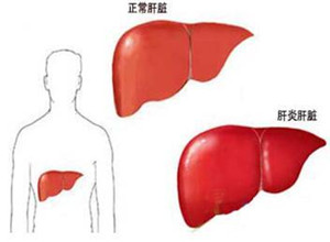 自身免疫性肝炎百科
