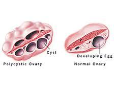 多囊卵巢综合征百科