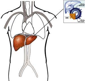 肝包虫病百科