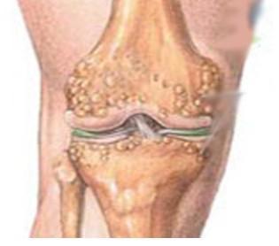 膝关节骨性关节炎百科