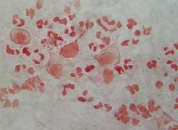 非淋菌性尿道炎