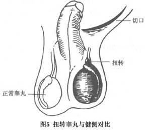 睾丸扭转百科