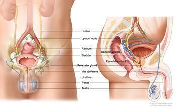 前列腺结石百科