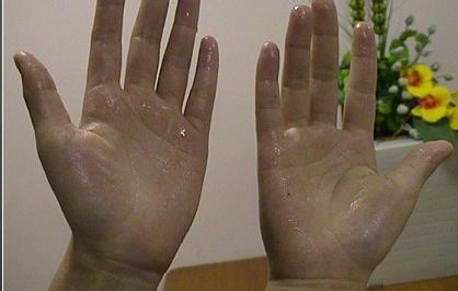 手汗症百科
