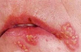 单纯疱疹病毒肺炎