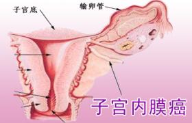 子宫内膜癌