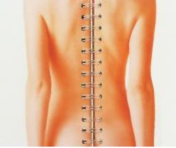 脊椎病百科
