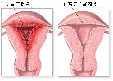 子宫内膜增生百科