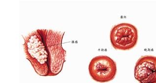 宫颈癌百科