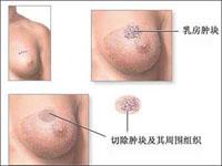 乳腺肿瘤百科