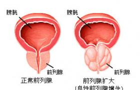 前列腺增生