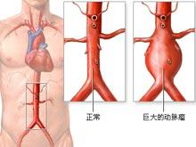 动脉瘤百科