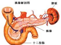 胰腺炎百科