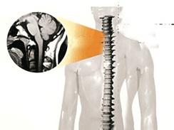 脊髓空洞症