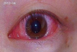 红眼病百科