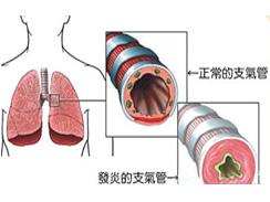 支气管炎百科