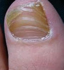 灰指甲百科