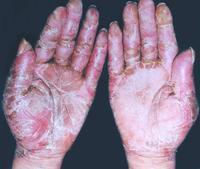 烟酸缺乏神经病百科