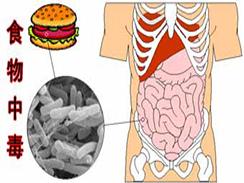 食物中毒百科