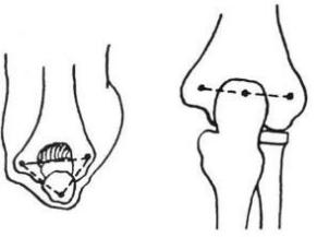 肘关节脱位百科