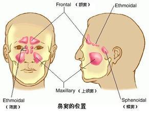 鼻窦炎百科