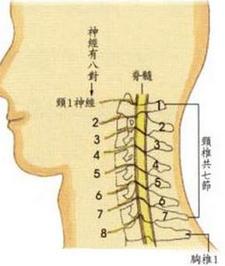 神经根型颈椎病