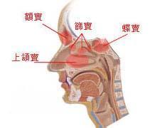 慢性鼻炎百科