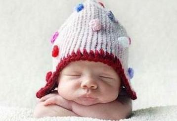 新生儿生理性黄疸百科