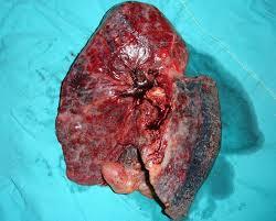 肺纤维化百科